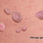 verruga-genital-002